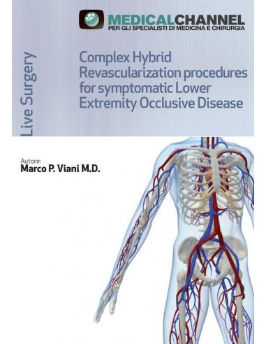 Complex Hybrid Revascularization Procedures